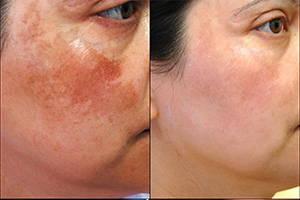 дермасептик крем до и после применения